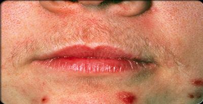 pcos - policisztás ovárium szindróma