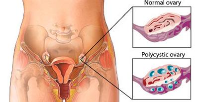 policisztas-ovarium-szindroma