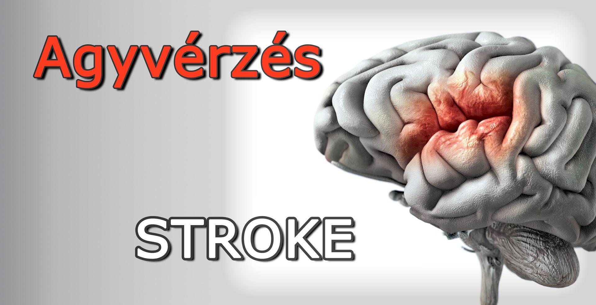 agyvérzés-stroke